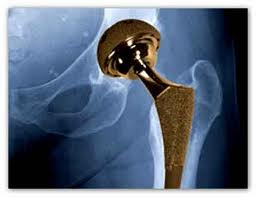 Stryker Rejuvenate metal hip injury attorney